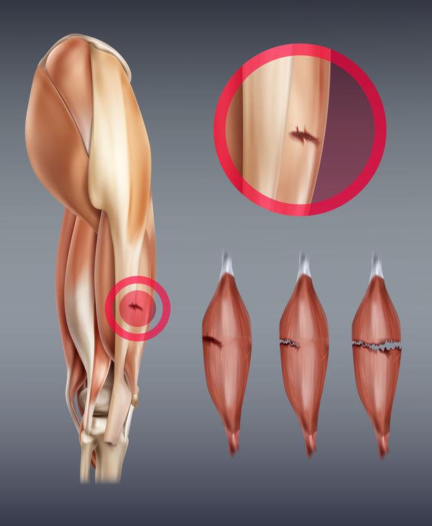 Wie erkennt man eine Muskelverletzung?